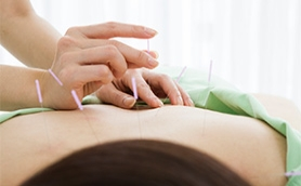 Can Acupuncture Treat Chronic Back Pain?